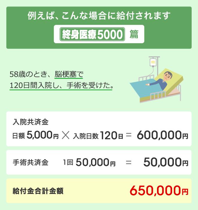 「こくみん共済 終身医療5000」の画像検索結果